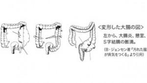 変形した大腸の図